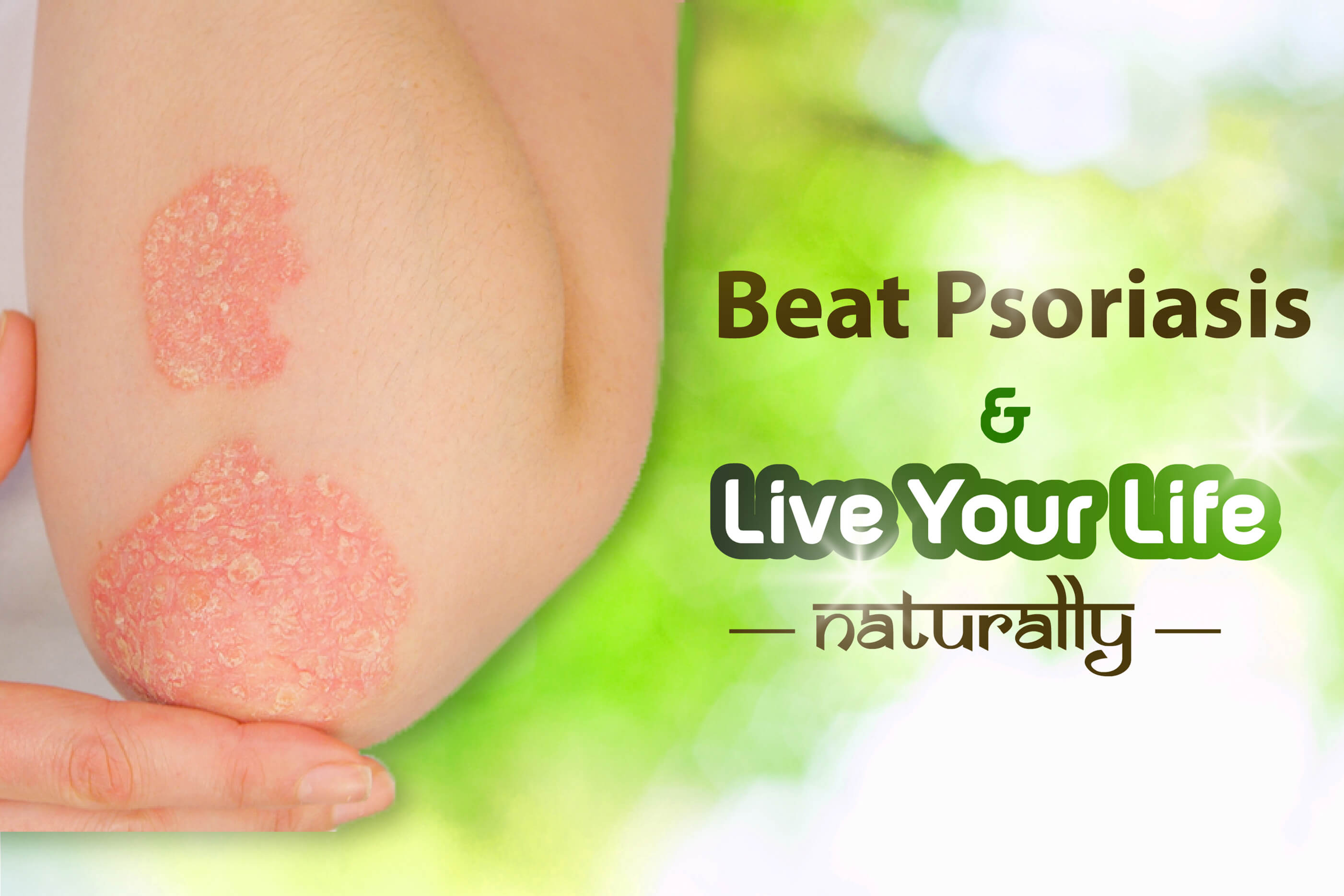 Psoriasis: What it is and How Ayurveda Helps Treat it