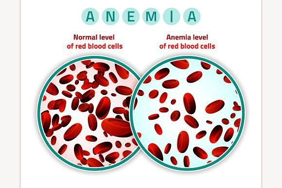 Cure Anaemia with Ayurvedic Herbs and Treatment Methods