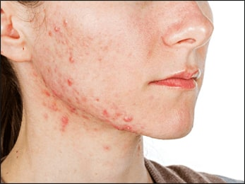 Dealing with Acne - Ayurvedic Treatment and Natural Remedies